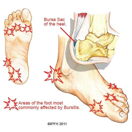 bursitis | institute for preventive foothealth (ipfh), Human Body