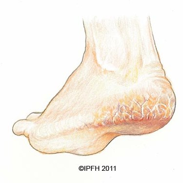 # Cracked Heel Pain Relief - Painful Growth On The Back Of ...