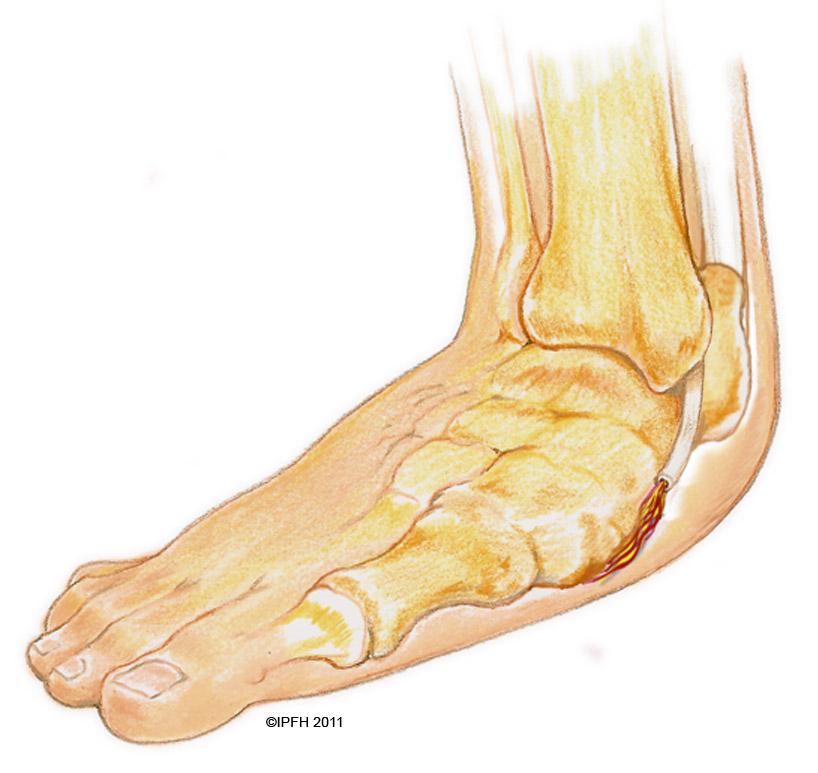 posterior tibial tendon dysfunction - Juve.cenitdelacabrera.co