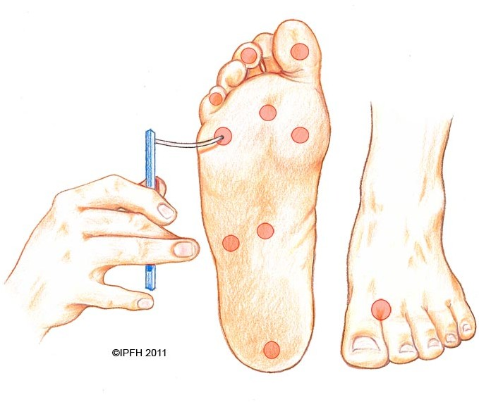 neuropathy / numbness | institute for preventive foothealth (ipfh), Skeleton