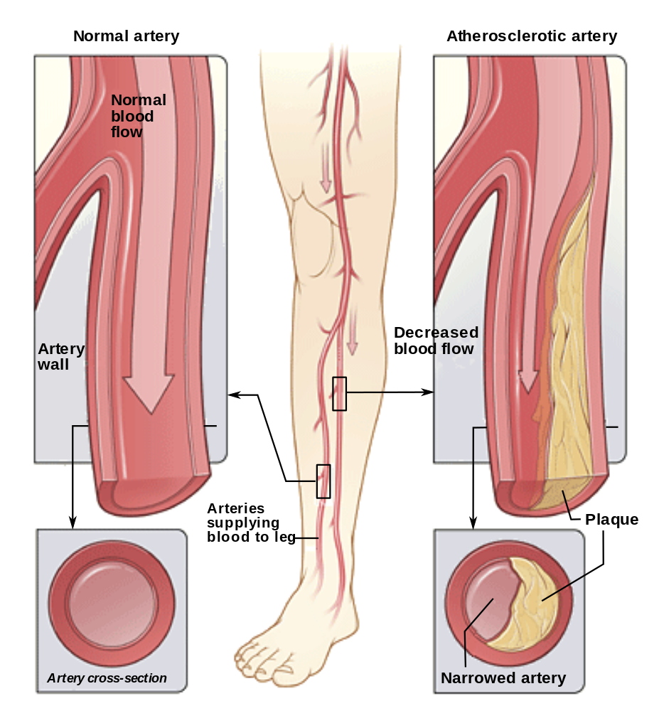Peripheral Arterial Disease | Institute for Preventive Foothealth (IPFH)
