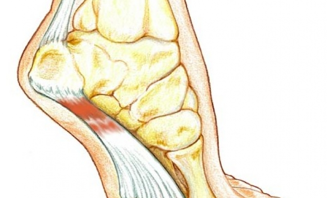 Plantar Fasciitis - Here's what you need to know!